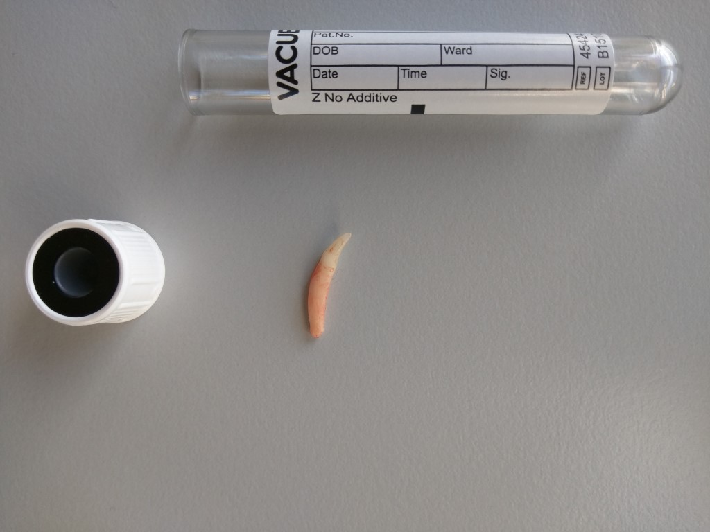 Ellie's Extracted Tooth